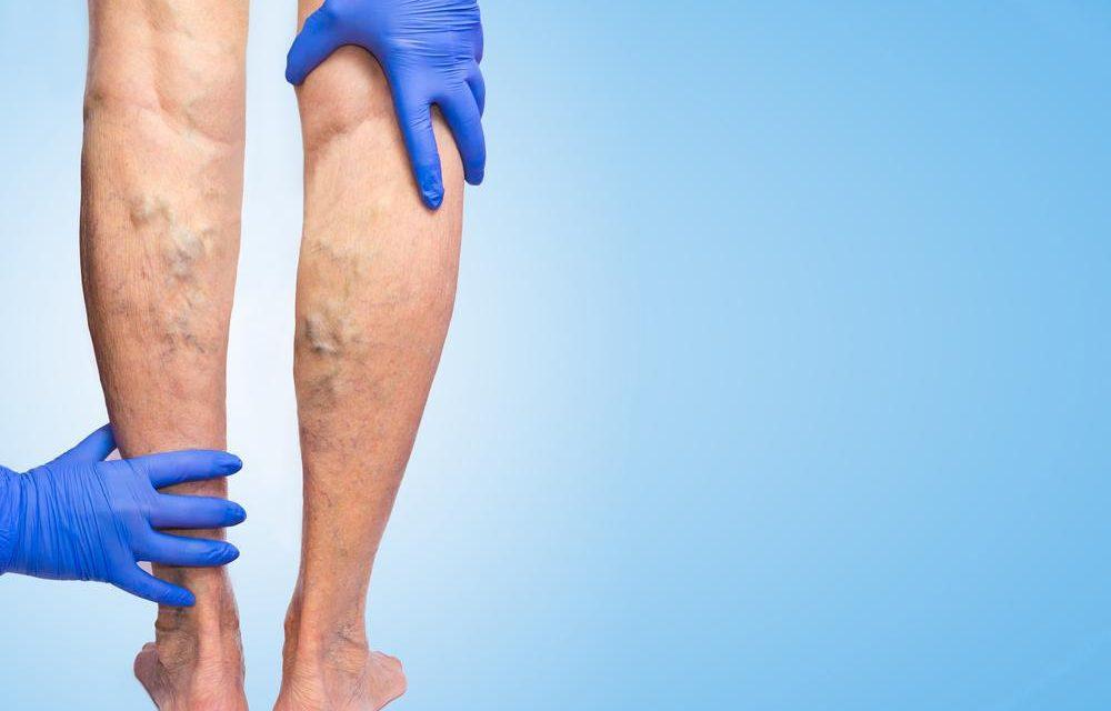 Ce cauzează dureri severe la picioare și picioare