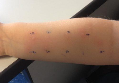 teste-cutanate-alergenice